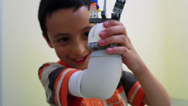 A prosthetic system that lets kids make their own LEGO robot limbs