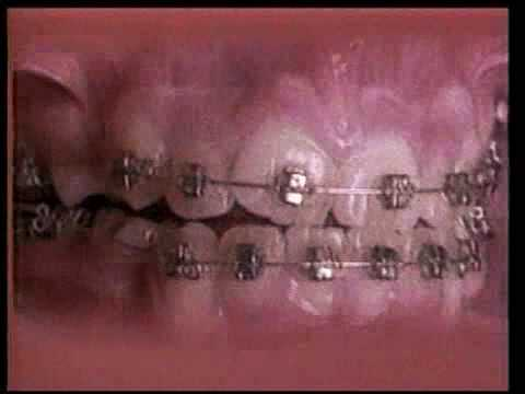 Straightening teeth with dental braces: An 18 month time lapse