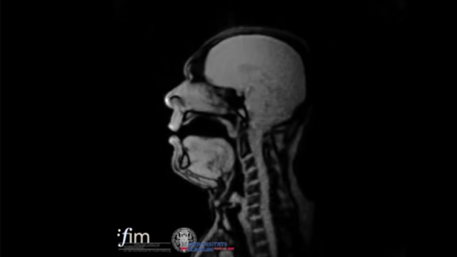 Opera singers sing during real-time MRI scans