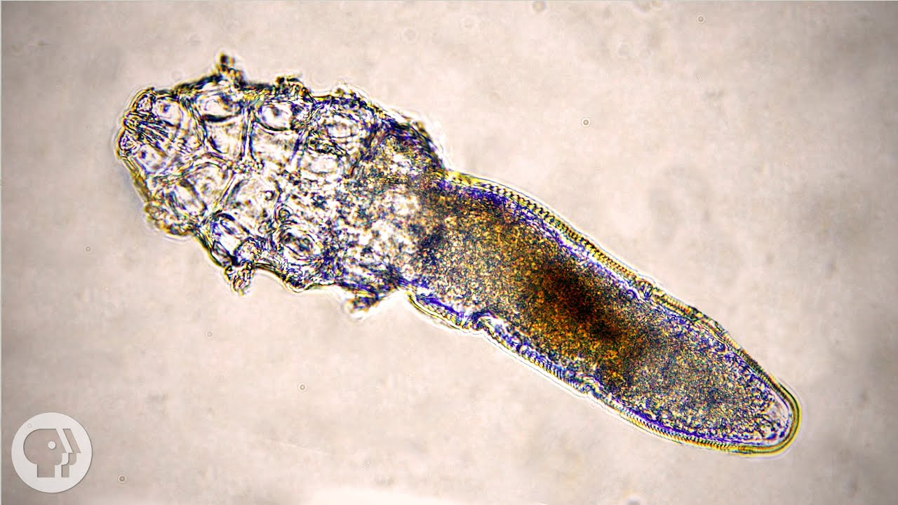 The face mites that live inside your pores